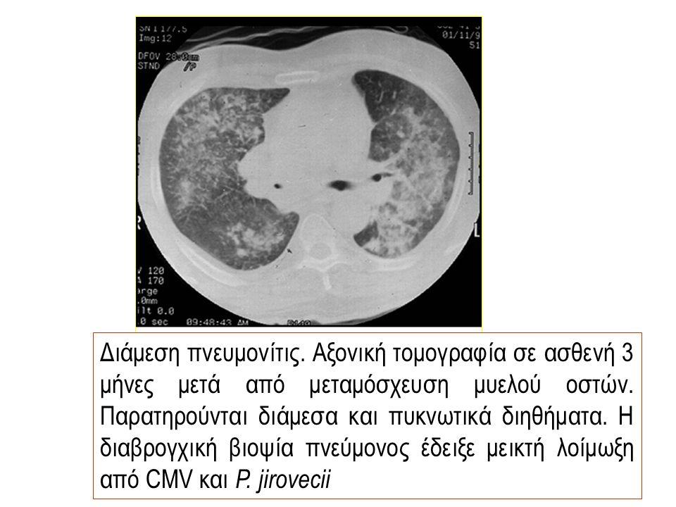Διάμεση πνευμονίτις. Αξονική τομογραφία σε ασθενή 3 μήνες μετά από μεταμόσχευση μυελού οστών.
