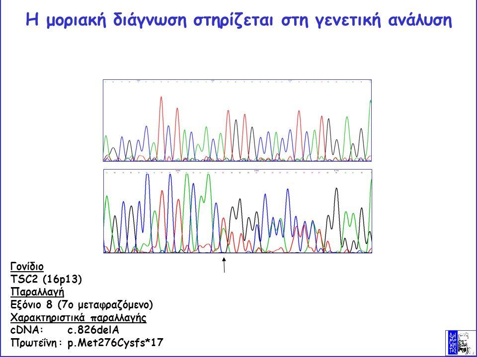 Η μοριακή διάγνωση στηρίζεται στη γενετική ανάλυση Γονίδιο TSC2 (16p13) Παραλλαγή Εξόνιο 8 (7ο μεταφραζόμενο) Χαρακτηριστικά παραλλαγής cDNA: c.826delA Πρωτεΐνη: p.Met276Cysfs*17