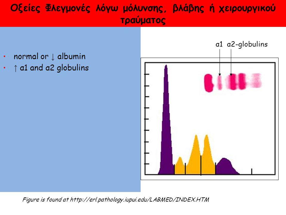 Οξείες Φλεγμονές λόγω μόλυνσης, βλάβης ή χειρουργικού τραύματος normal or ↓ albumin ↑ α1 and α2 globulins Figure is found at http://erl.pathology.iupui.edu/LABMED/INDEX.HTM α1 α2-globulins
