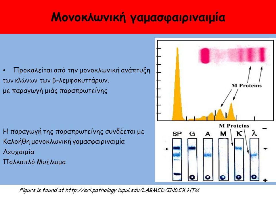 Μονοκλωνική γαμασφαιριναιμία Προκαλείται από την μονοκλωνική ανάπτυξη των κλώνων των β -λεμφοκυττάρων.