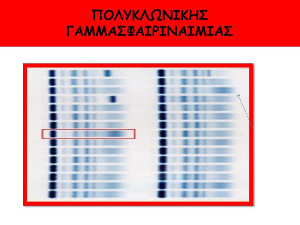 ΠΟΛΥΚΛΩΝΙΚΗΣ ΓΑΜΜΑΣΦΑΙΡΙΝΑΙΜΙΑΣ