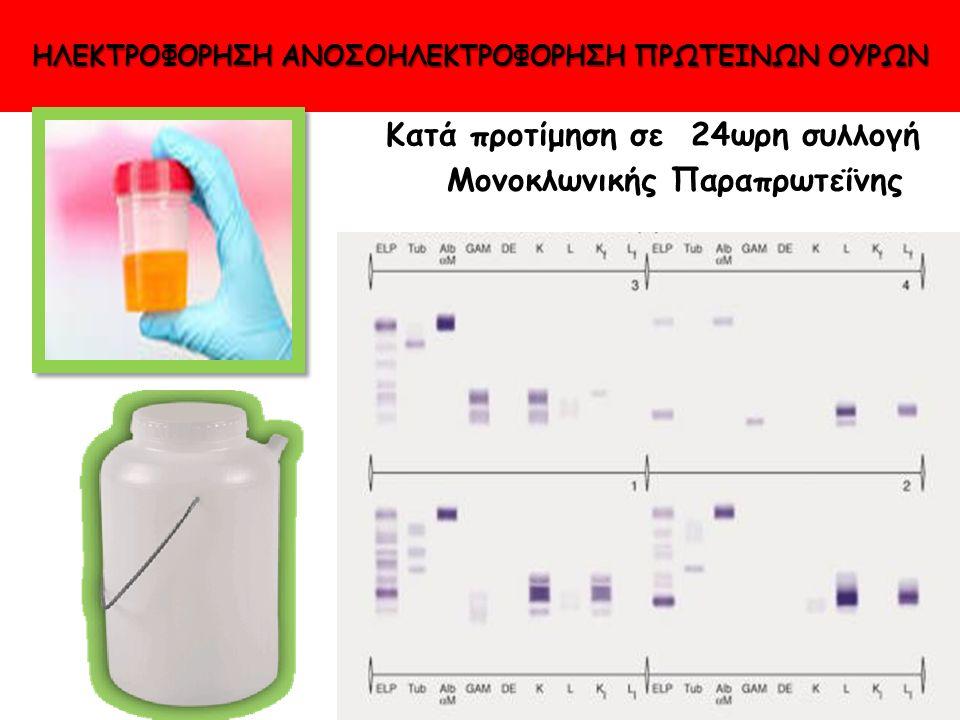 ΗΛΕΚΤΡΟΦΟΡΗΣΗ ΑΝΟΣΟΗΛΕΚΤΡΟΦΟΡΗΣΗ ΠΡΩΤΕΙΝΩΝ ΟΥΡΩΝ Κατά προτίμηση σε 24ωρη συλλογή Μονοκλωνικής Παραπρωτεΐνης