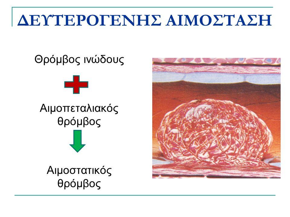ΔΕΥΤΕΡΟΓΕΝΗΣ ΑΙΜΟΣΤΑΣΗ Θρόμβος ινώδους Αιμοπεταλιακός θρόμβος Αιμοστατικός θρόμβος