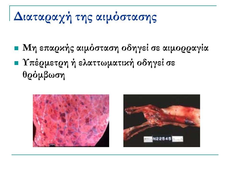 Διαταραχή της αιμόστασης Μη επαρκής αιμόσταση οδηγεί σε αιμορραγία Υπέρμετρη ή ελαττωματική οδηγεί σε θρόμβωση