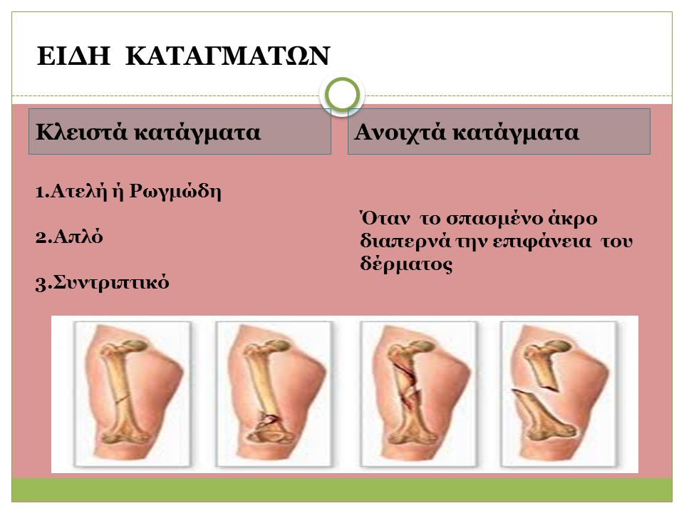 Κλειστά κατάγματαΑνοιχτά κατάγματα 1.Ατελή ή Ρωγμώδη 2.Απλό 3.Συντριπτικό Όταν το σπασμένο άκρο διαπερνά την επιφάνεια του δέρματος ΕΙΔΗ ΚΑΤΑΓΜΑΤΩΝ