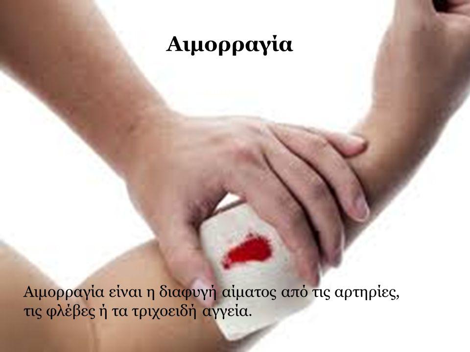 Αιμορραγία είναι η διαφυγή αίματος από τις αρτηρίες, τις φλέβες ή τα τριχοειδή αγγεία. Αιμορραγία