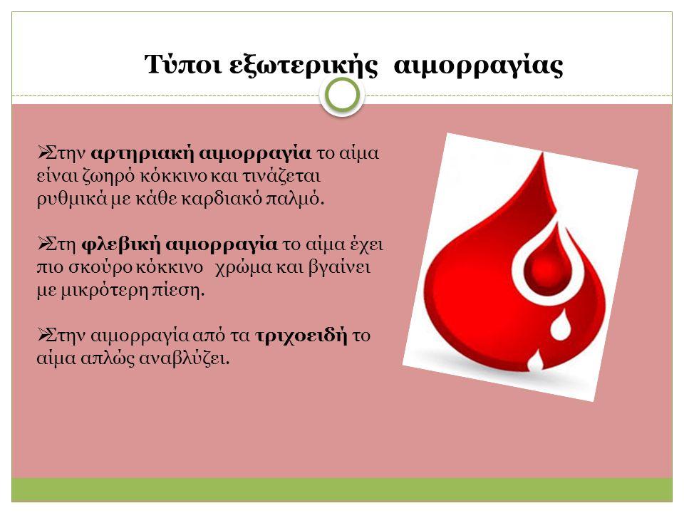 Τύποι εξωτερικής αιμορραγίας  Στην αρτηριακή αιμορραγία το αίμα είναι ζωηρό κόκκινο και τινάζεται ρυθμικά με κάθε καρδιακό παλμό.
