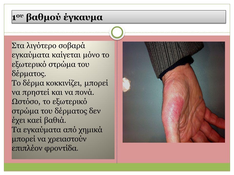 1 ου βαθμού έγκαυμα Στα λιγότερο σοβαρά εγκαύματα καίγεται μόνο το εξωτερικό στρώμα του δέρματος.