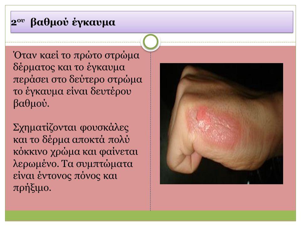 2 ου βαθμού έγκαυμα Όταν καεί το πρώτο στρώμα δέρματος και το έγκαυμα περάσει στο δεύτερο στρώμα το έγκαυμα είναι δευτέρου βαθμού.