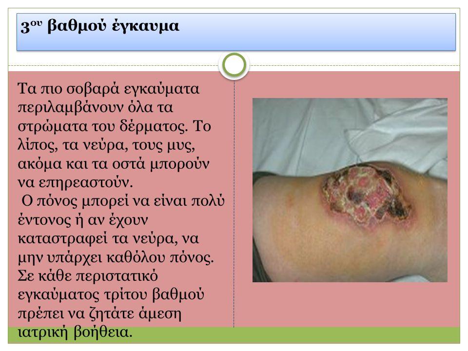 3 ου βαθμού έγκαυμα Τα πιο σοβαρά εγκαύματα περιλαμβάνουν όλα τα στρώματα του δέρματος.