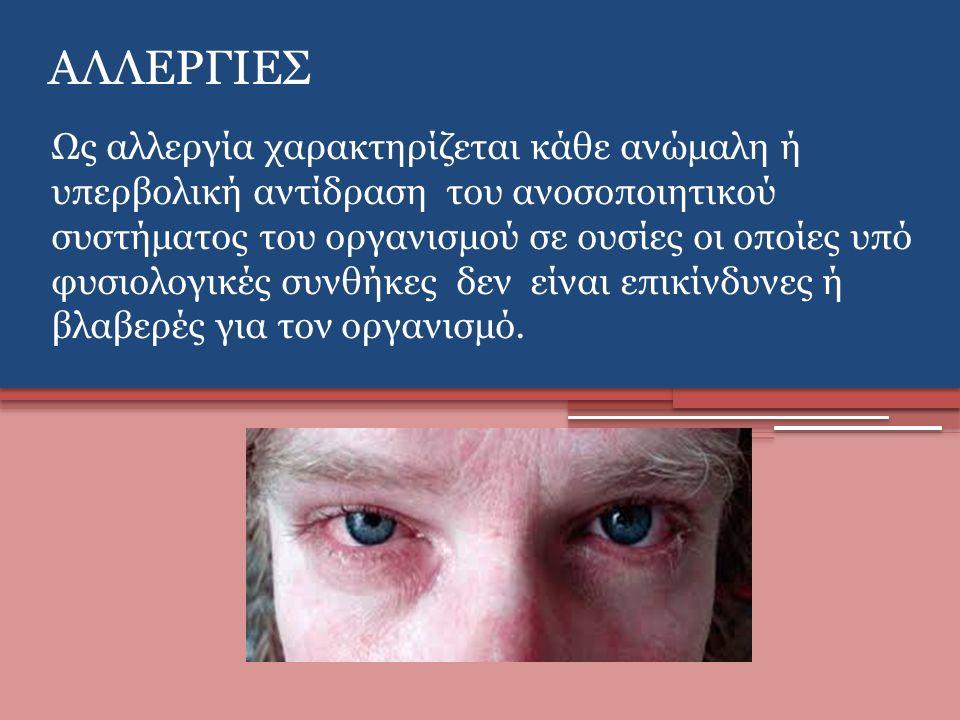 ΑΛΛΕΡΓΙΕΣ Ως αλλεργία χαρακτηρίζεται κάθε ανώμαλη ή υπερβολική αντίδραση του ανοσοποιητικού συστήματος του οργανισμού σε ουσίες οι οποίες υπό φυσιολογικές συνθήκες δεν είναι επικίνδυνες ή βλαβερές για τον οργανισμό.