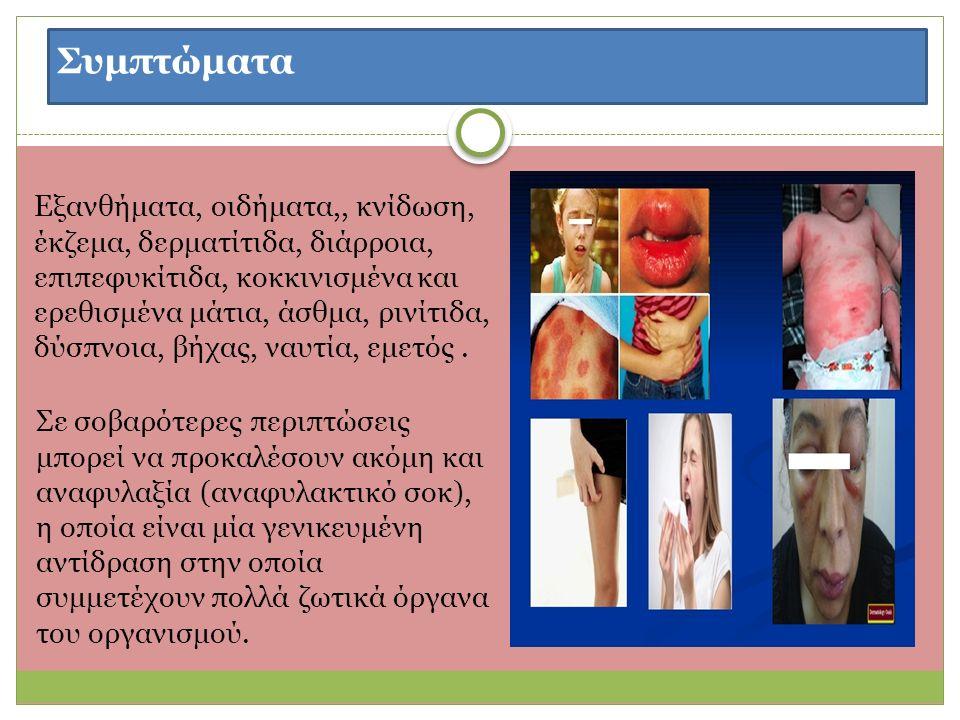 Συμπτώματα Εξανθήματα, οιδήματα,, κνίδωση, έκζεμα, δερματίτιδα, διάρροια, επιπεφυκίτιδα, κοκκινισμένα και ερεθισμένα μάτια, άσθμα, ρινίτιδα, δύσπνοια, βήχας, ναυτία, εμετός.