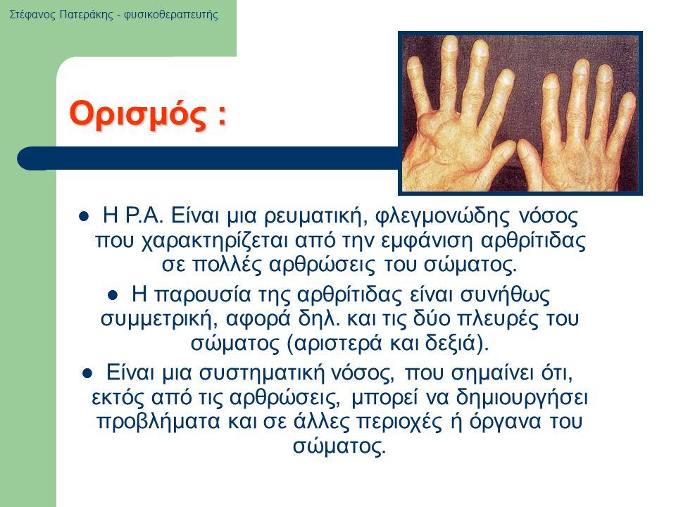 Ορισμός : Η Ρ.Α. Είναι μια ρευματική, φλεγμονώδης νόσος που χαρακτηρίζεται από την εμφάνιση αρθρίτιδας σε πολλές αρθρώσεις του σώματος. Η παρουσία της