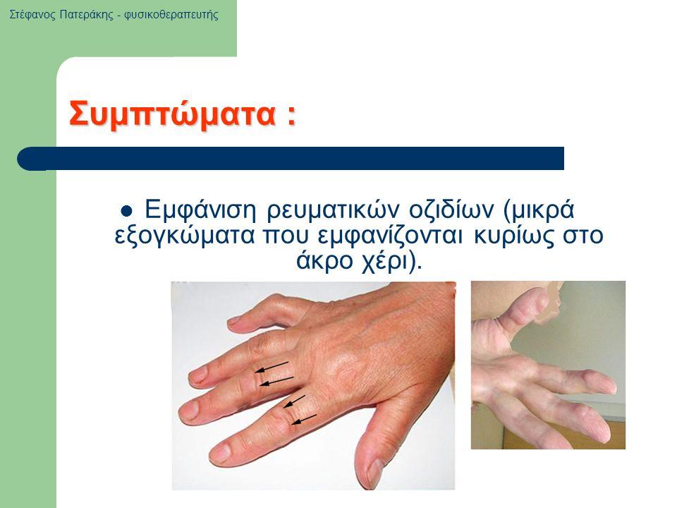 Συμπτώματα : Εμφάνιση ρευματικών οζιδίων (μικρά εξογκώματα που εμφανίζονται κυρίως στο άκρο χέρι). Στέφανος Πατεράκης - φυσικοθεραπευτής