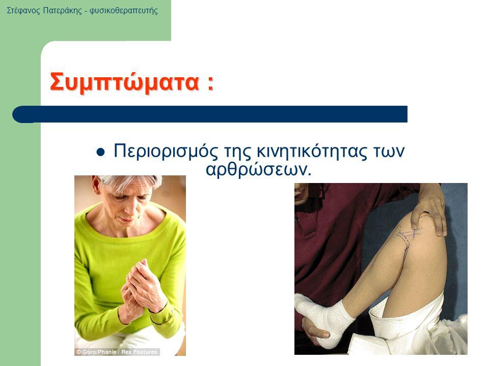 Συμπτώματα : Περιορισμός της κινητικότητας των αρθρώσεων. Στέφανος Πατεράκης - φυσικοθεραπευτής