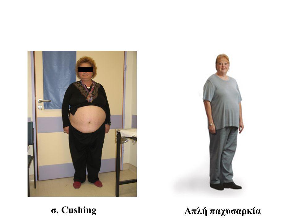 σ. Cushing Απλή παχυσαρκία