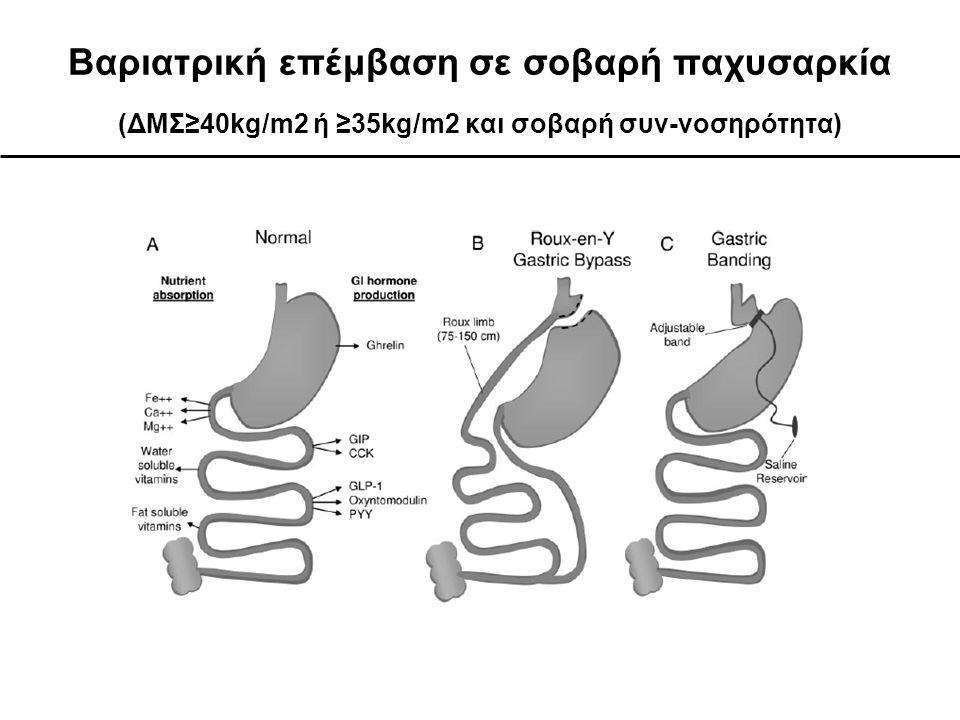 Βαριατρική επέμβαση σε σοβαρή παχυσαρκία (ΔΜΣ≥40kg/m2 ή ≥35kg/m2 και σοβαρή συν-νοσηρότητα)