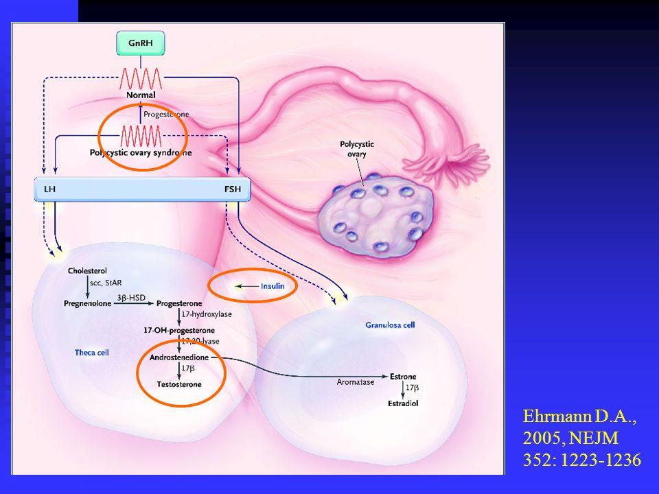 Mastorakos et al, 2006, Fertility and Sterility 85: 420-427 EE 2 /Desogestrel vs EE 2 /Cyproterone acetate σε νεαρές γυναίκες με PCOS ΑΣΘΕΝΕΙΣ ΚΑΙ ΜΕΘΟΔΟΣ (1)