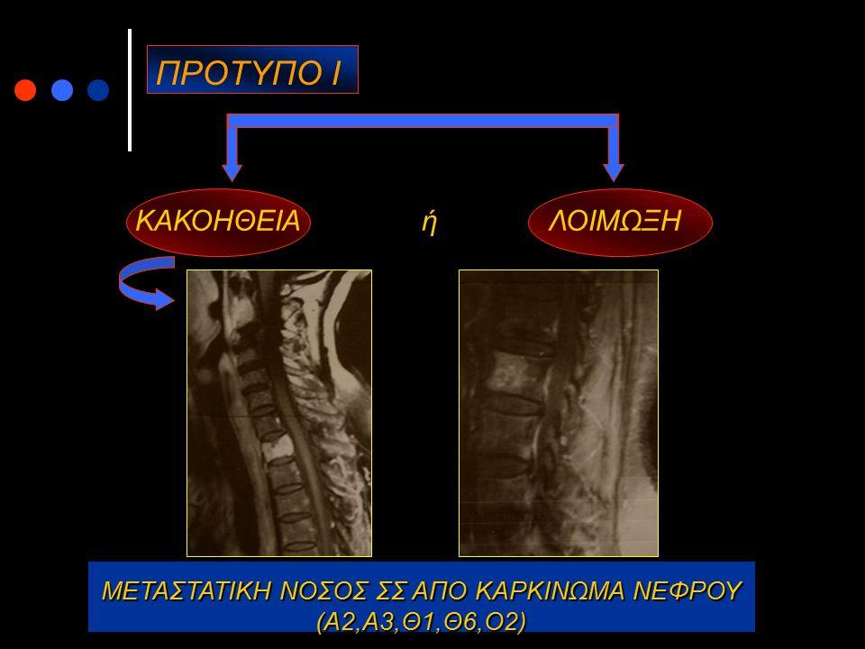 ΟΣΦΥΑΛΓΙΑ – ΠΡΟΤΥΠΑ ΠΟΝΟΥ ΠΡΟΤΥΠΟ VΙ Πόνος παρασπονδυλικός που αντανακλά στα κάτω άκρα, χωρίς να ακολουθεί κάποια συγκεκριμένη δερμοτομιακή κατανομή, συνδυαζόμενος και με φαινόμενα από το αυτόνομο νευρικό σύστημα (ανόρθωση τριχών, εφίδρωση), με σπασμούς μυϊκών μαζών, trigger επώδυνα σημεία που ανακουφίζονται στις εγχύσεις, συχνά συνοδευόμενος από μη φυσιολογικό ψυχολογικό προφίλ (άγχος, νεύρωση, υποχονδρία, υστερία).