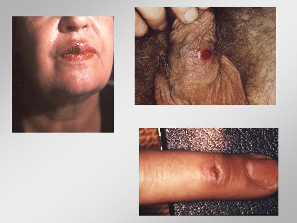 Treponema pallidum (ωχρά σπειροχαίτη) Δευτερογενής Σύφιλη (6-8 εβδομάδες μετά την μόλυνση) Εξάνθημα: συφιλιδική ροδάνθη (συμμετρικό, ανώδυνο, κηλιδώδες ή κηλιδοβλατιδώδες, αναπτύσσεται παντού, χαρακτηριστικά: στις παλάμες και πέλματα) Λευκόφαιες διαβρώσεις βλεννογόνων (στόμα, φάρυγγας, γεννητικά όργανα) Γενικευμένη ανώδυνη διόγκωση λεμφαδένων Γενικά συμπτώματα (πυρετός, κακουχία, ανορεξία) Λοίμωξη ΚΝΣ (πιθανή) Βλάβες εξαιρετικά μολυσματικές Χωρίς θεραπεία: εξαφάνιση εξανθήματος σε εβδομάδες