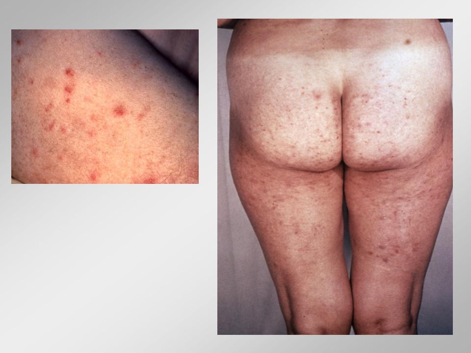 Βλεννόρροια ή Γονοκοκκική Λοίμωξη Θεραπεία Cetriaxone, cefixime Azithromycin, ciprofloxacin, cefpodoxime, spectinomycin Ταυτόχρονη λοίμωξη από Chlamydia trachomatis Άνδρες: 15-25% Γυναίκες: 35-50% Xορήγηση: azithromycin, doxycycline