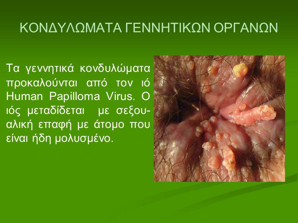 ΚΟΝΔΥΛΩΜΑΤΑ ΓΕΝΝΗΤΙΚΩΝ ΟΡΓΑΝΩΝ Τα γεννητικά κονδυλώματα προκαλούνται από τον ιό Human Papilloma Virus. Ο ιός μεταδίδεται με σεξου- αλική επαφή με άτομ