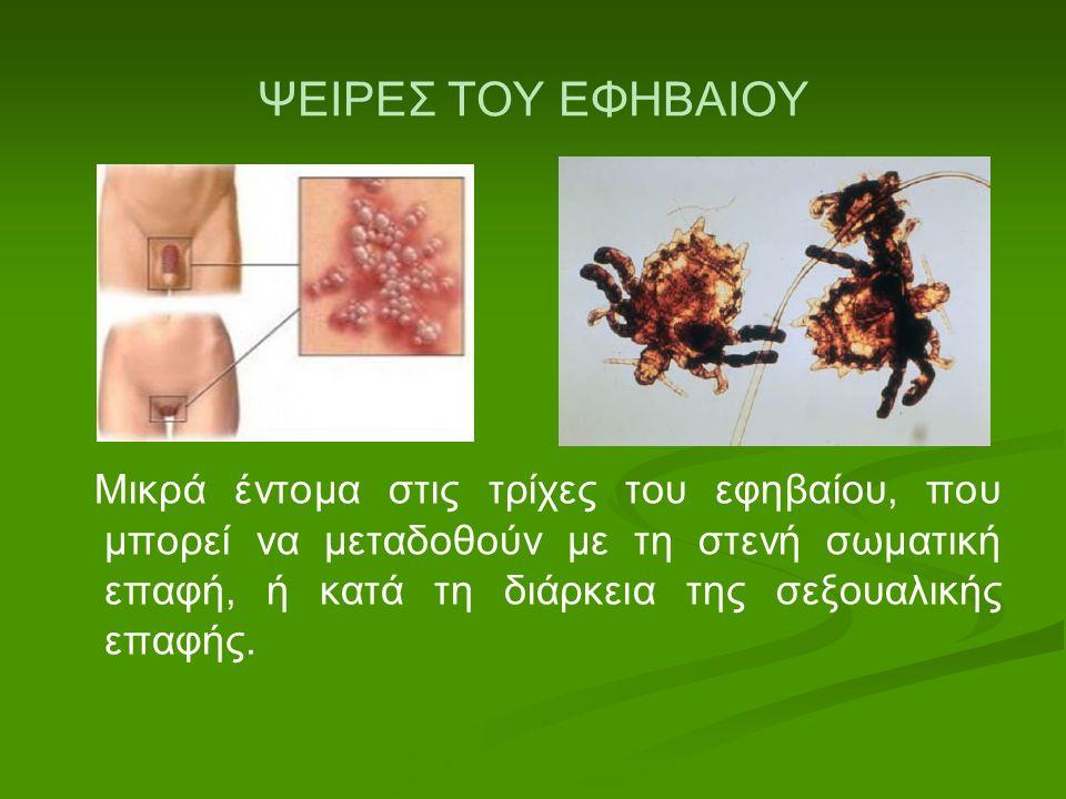 ΨΕΙΡΕΣ ΤΟΥ ΕΦΗΒΑΙΟΥ Μικρά έντομα στις τρίχες του εφηβαίου, που μπορεί να μεταδοθούν με τη στενή σωματική επαφή, ή κατά τη διάρκεια της σεξουαλικής επα