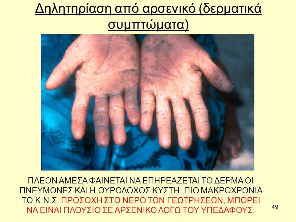 49 Δηλητηρίαση από αρσενικό (δερματικά συμπτώματα) ΠΛΕΟΝ ΑΜΕΣΑ ΦΑΙΝΕΤΑΙ ΝΑ ΕΠΗΡΕΑΖΕΤΑΙ ΤΟ ΔΕΡΜΑ ΟΙ ΠΝΕΥΜΟΝΕΣ ΚΑΙ Η ΟΥΡΟΔΟΧΟΣ ΚΥΣΤΗ. ΠΙΟ ΜΑΚΡΟΧΡΟΝΙΑ ΤΟ