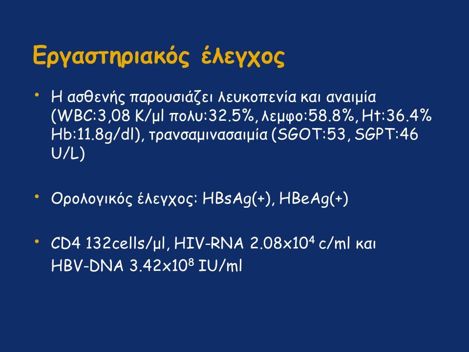Εργαστηριακός έλεγχος Η ασθενής παρουσιάζει λευκοπενία και αναιμία (WBC:3,08 Κ/μl πολυ:32.5%, λεμφο:58.8%, Ηt:36.4% Ηb:11.8g/dl), τρανσαμινασαιμία (SGOT:53, SGPT:46 U/L) Ορολογικός έλεγχος: HBsAg(+), HBeAg(+) CD4 132cells/μl, HIV-RNA 2.08x10 4 c/ml και HBV-DNA 3.42x10 8 IU/ml