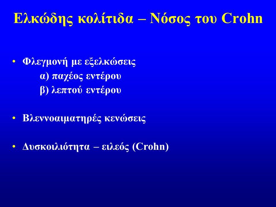 Ελκώδης κολίτιδα – Νόσος του Crohn Φλεγμονή με εξελκώσεις α) παχέος εντέρου β) λεπτού εντέρου Βλεννοαιματηρές κενώσεις Δυσκοιλιότητα – ειλεός (Crohn)