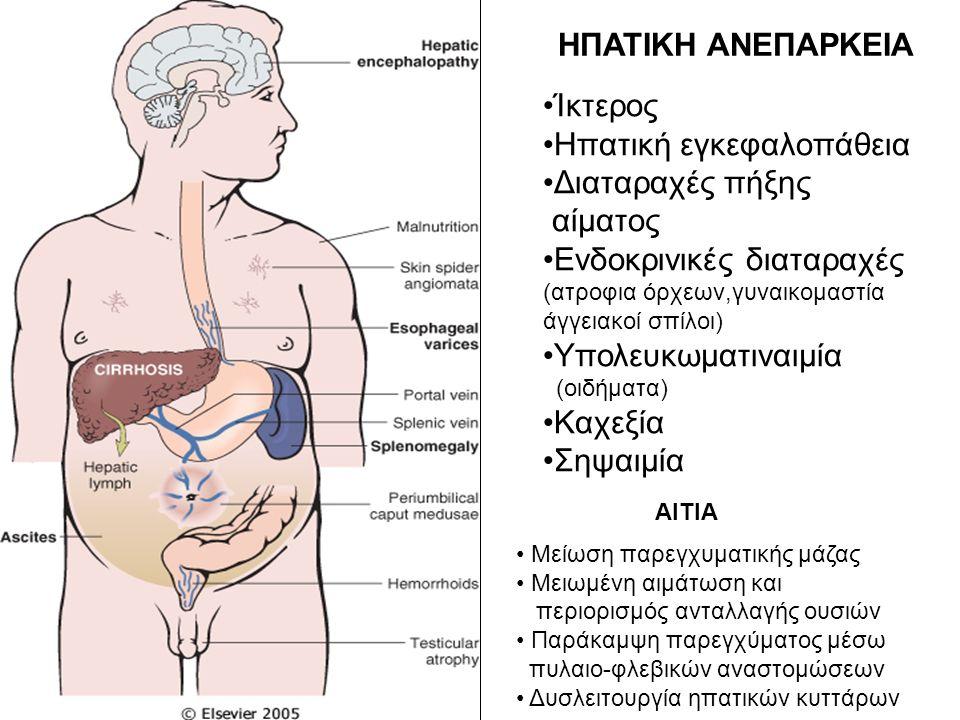 ΗΠΑΤΙΚΗ ΑΝΕΠΑΡΚΕΙΑ Ίκτερος Ηπατική εγκεφαλοπάθεια Διαταραχές πήξης αίματος Ενδοκρινικές διαταραχές (ατροφια όρχεων,γυναικομαστία άγγειακοί σπίλοι) Υπο