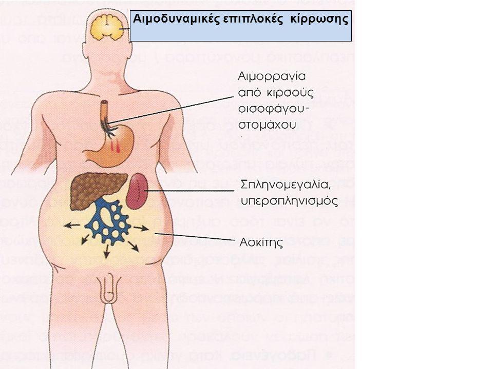 Αιμοδυναμικές επιπλοκές κίρρωσης