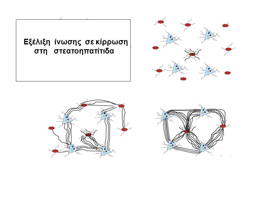 Εξέλιξη ίνωσης σε κίρρωση στη στεατοηπατίτιδα