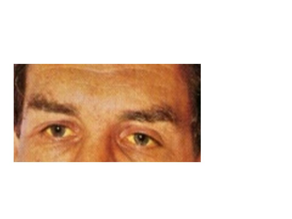 Πρωτοπαθής χολική κίρρωση γυναίκες μέσης ηλικίας προϊούσα χολόσταση (χρόνιο χολοστατικό σύνδρομο) καταβολή, κνησμός, ίκτερος, ξανθώματα αντιμιτοχονδριακά αντισώματα στον ορό (95%) άλλα αυτοαντισώματα ορού: αντιθυρεοειδικά αντιπυρηνικά αντιαιμοπεταλιακά