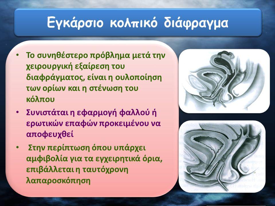 Το συνηθέστερο πρόβλημα μετά την χειρουργική εξαίρεση του διαφράγματος, είναι η ουλοποίηση των ορίων και η στένωση του κόλπου Συνιστάται η εφαρμογή φα