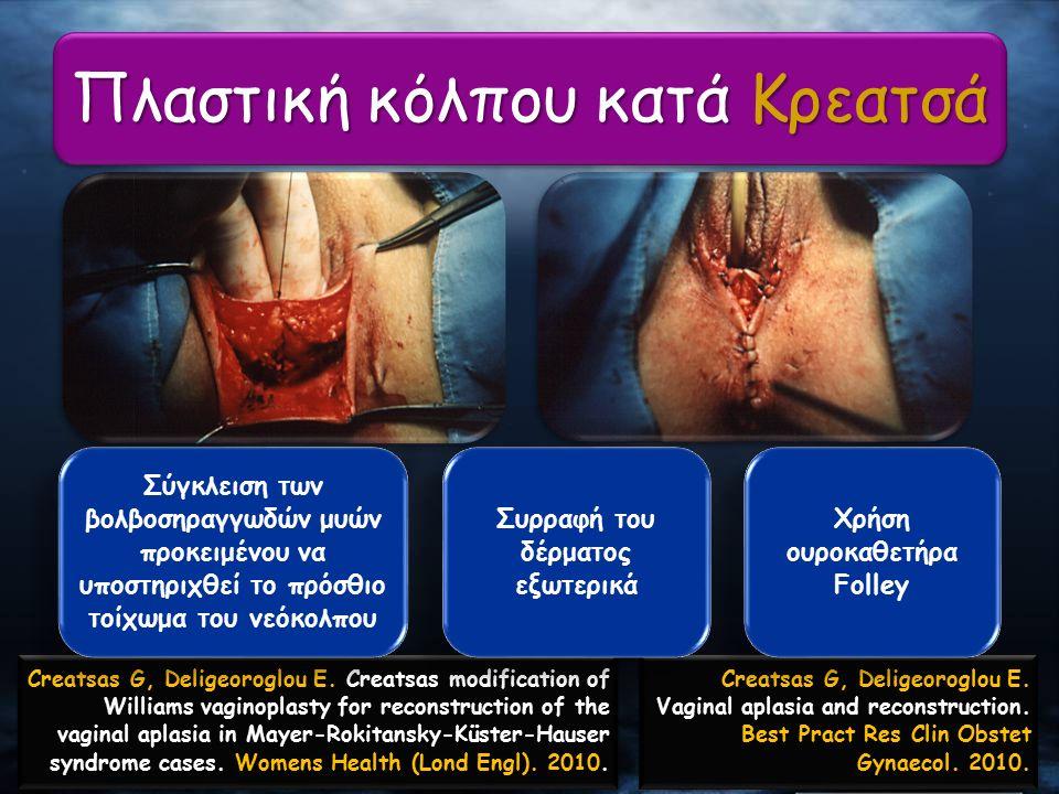 Πλαστική κόλπου κατά Κρεατσά Creatsas G, Deligeoroglou E. Creatsas modification of Williams vaginoplasty for reconstruction of the vaginal aplasia in