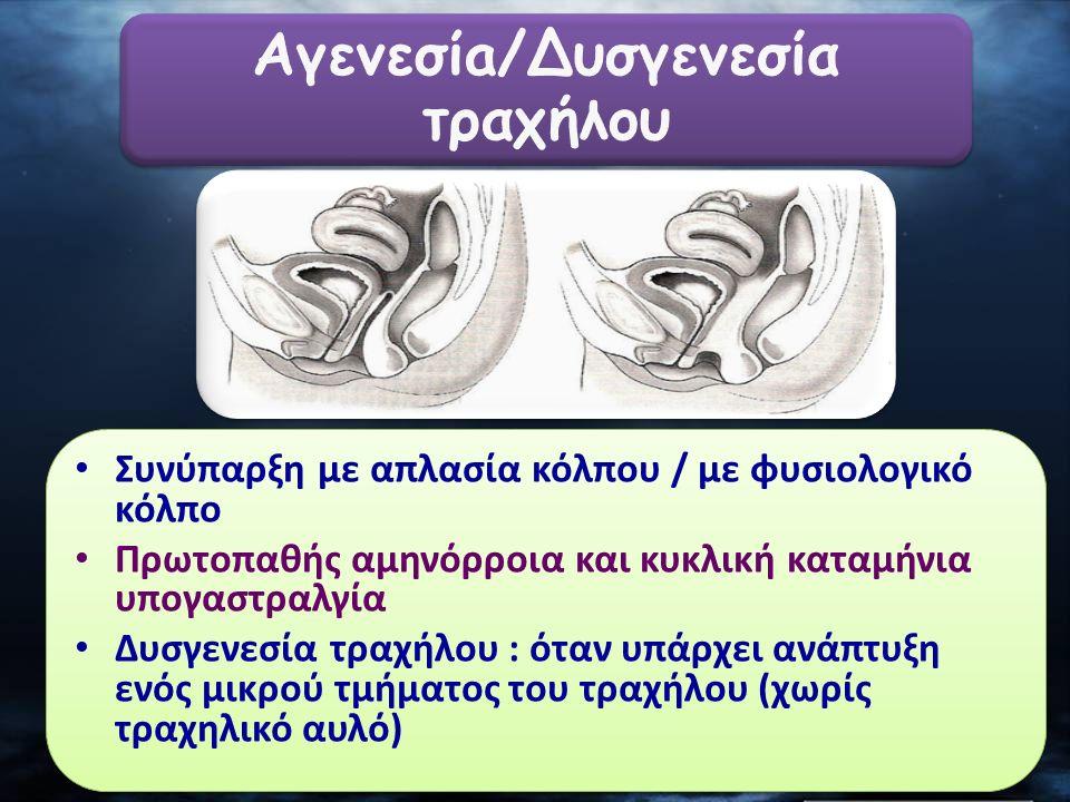 Συνύπαρξη με απλασία κόλπου / με φυσιολογικό κόλπο Πρωτοπαθής αμηνόρροια και κυκλική καταμήνια υπογαστραλγία Δυσγενεσία τραχήλου : όταν υπάρχει ανάπτυ