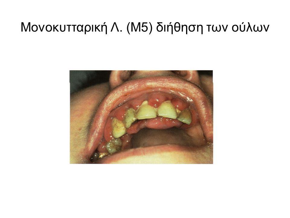Μονοκυτταρική Λ. (Μ5) διήθηση των ούλων