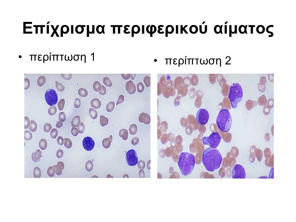 Επίχρισμα περιφερικού αίματος περίπτωση 1 περίπτωση 2