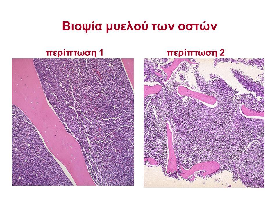 Βιοψία μυελού των οστών περίπτωση 2περίπτωση 1