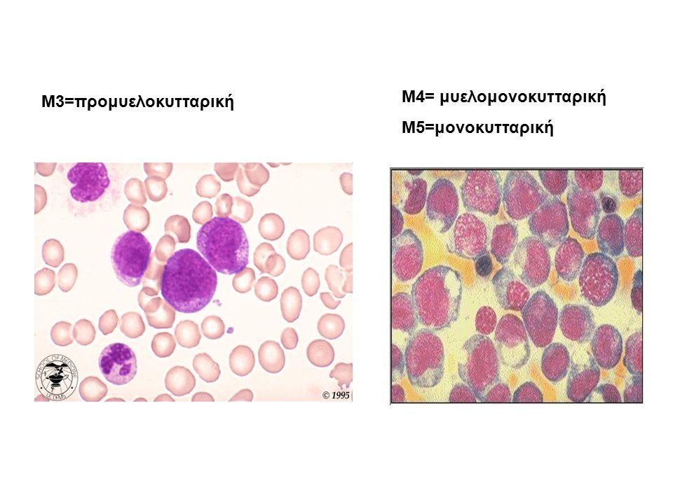 M3=προμυελοκυτταρική Μ4= μυελομονοκυτταρική Μ5=μονοκυτταρική
