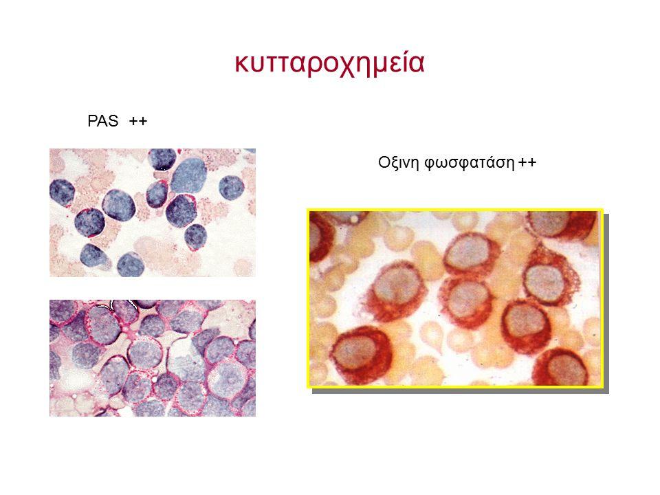 κυτταροχημεία PAS ++ Οξινη φωσφατάση ++