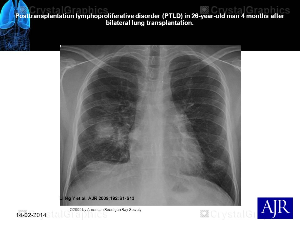 14-02-2014 Posttransplantation lymphoproliferative disorder (PTLD) in 26-year-old man 4 months after bilateral lung transplantation. Li Ng Y et al. AJ