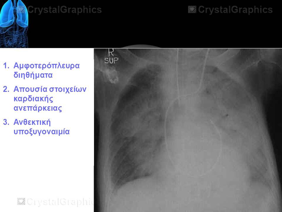 1.Αμφοτερόπλευρα διηθήματα 2.Απουσία στοιχείων καρδιακής ανεπάρκειας 3.Ανθεκτική υποξυγοναιμία
