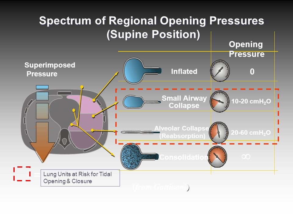 Spectrum of Regional Opening Pressures (Supine Position) Superimposed Pressure Inflated 0 Alveolar Collapse (Reabsorption) 20-60 cmH 2 O Small Airway Collapse 10-20 cmH 2 O Consolidation  ) (from Gattinoni) Lung Units at Risk for Tidal Opening & Closure = Opening Pressure
