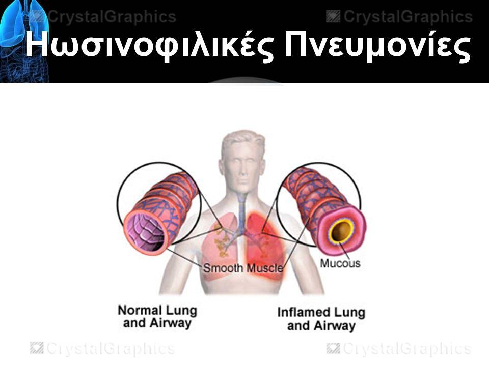 Ηωσινοφιλικές Πνευμονίες