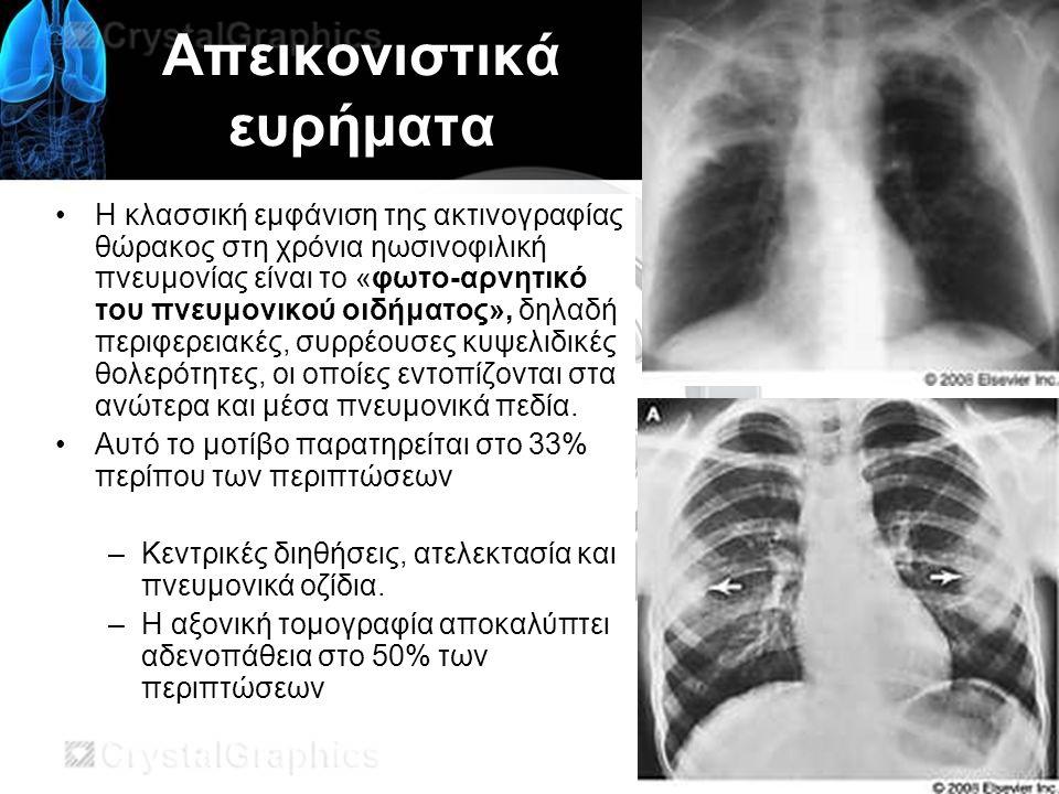 Απεικονιστικά ευρήματα Η κλασσική εμφάνιση της ακτινογραφίας θώρακος στη χρόνια ηωσινοφιλική πνευμονίας είναι το «φωτο-αρνητικό του πνευμονικού οιδήματος», δηλαδή περιφερειακές, συρρέουσες κυψελιδικές θολερότητες, οι οποίες εντοπίζονται στα ανώτερα και μέσα πνευμονικά πεδία.