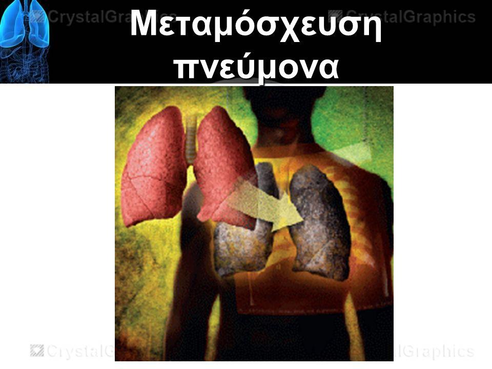 Μεταμόσχευση πνεύμονα
