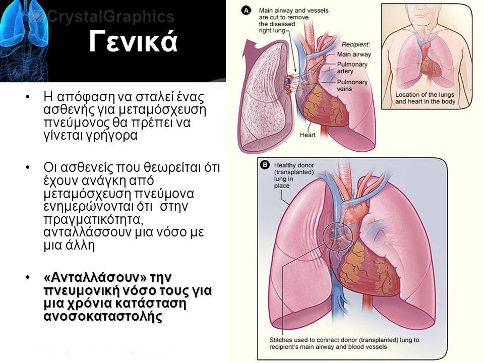 Γενικά Η απόφαση να σταλεί ένας ασθενής για μεταμόσχευση πνεύμονος θα πρέπει να γίνεται γρήγορα Οι ασθενείς που θεωρείται ότι έχουν ανάγκη από μεταμόσχευση πνεύμονα ενημερώνονται ότι στην πραγματικότητα, ανταλλάσσουν μια νόσο με μια άλλη «Ανταλλάσουν» την πνευμονική νόσο τους για μια χρόνια κατάσταση ανοσοκαταστολής«Ανταλλάσουν» την πνευμονική νόσο τους για μια χρόνια κατάσταση ανοσοκαταστολής