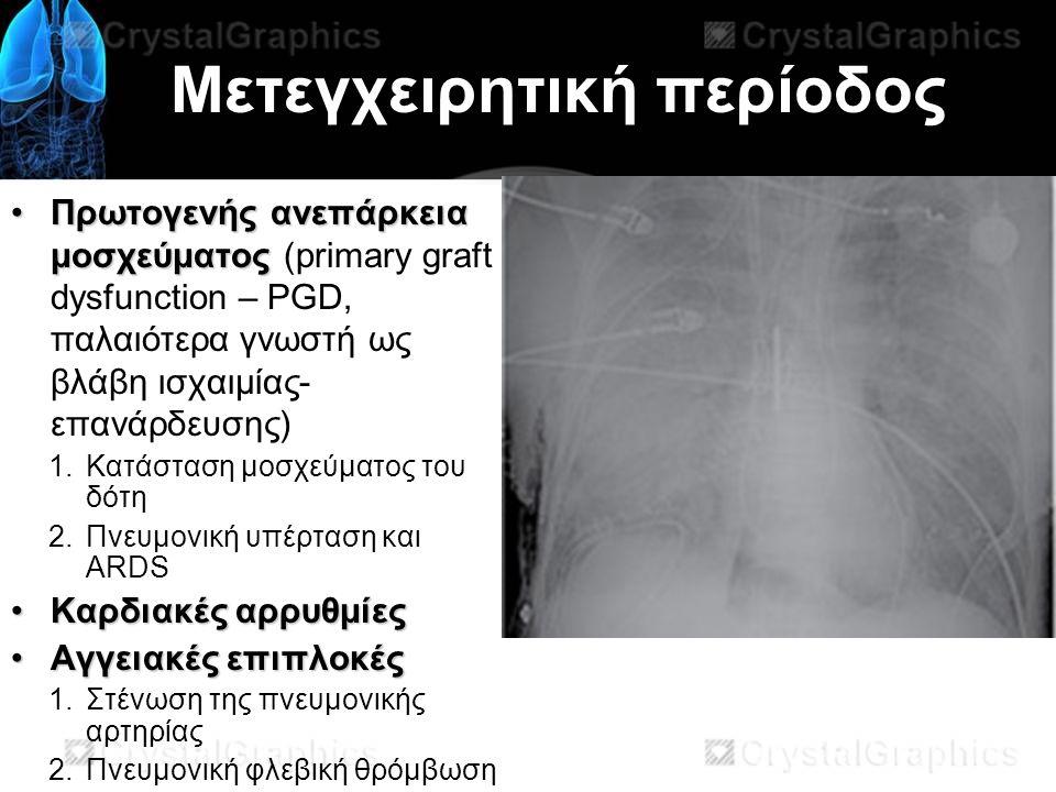 Μετεγχειρητική περίοδος Πρωτογενής ανεπάρκεια μοσχεύματοςΠρωτογενής ανεπάρκεια μοσχεύματος (primary graft dysfunction – PGD, παλαιότερα γνωστή ως βλάβη ισχαιμίας- επανάρδευσης) 1.Κατάσταση μοσχεύματος του δότη 2.Πνευμονική υπέρταση και ARDS Καρδιακές αρρυθμίεςΚαρδιακές αρρυθμίες Αγγειακές επιπλοκέςΑγγειακές επιπλοκές 1.Στένωση της πνευμονικής αρτηρίας 2.Πνευμονική φλεβική θρόμβωση